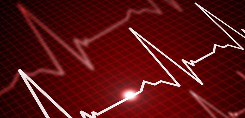ثبت سرپایی امواج قلبی