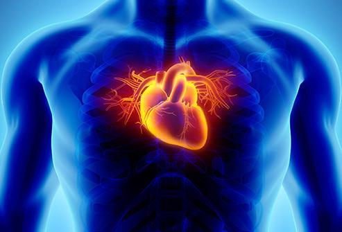 در هنگام وقوع سکته و مشاهده علائم سکته قلبی چه باید کرد؟