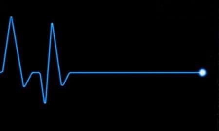 تفاوت بین ایست قلبی و سکته قلبی