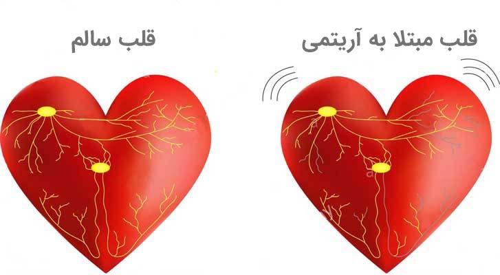 علت تپش قلب ناگهانی