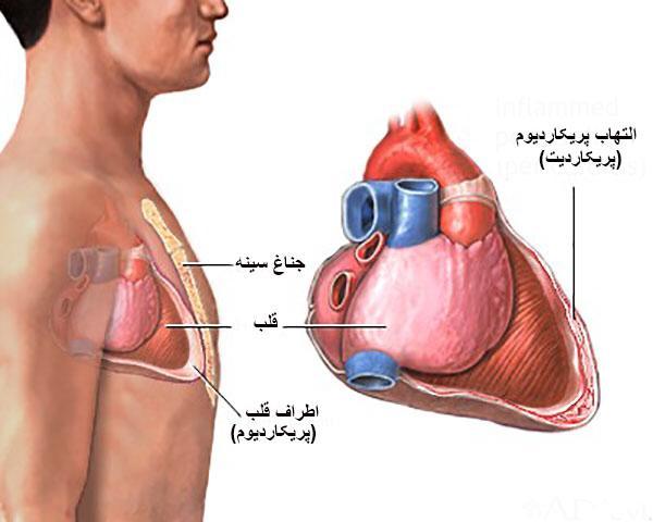 علت دردهای قفسه سینه